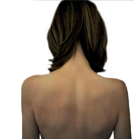 Euthanasie na strijd van 25 jaar tegen anorexia