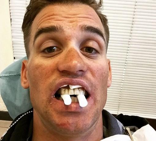 Stybar bijna zonder tanden aan de start in Strade Bianche