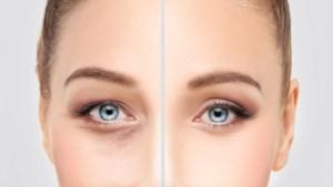 Vaarwel donkere kringen: ingreep aan onderste ooglid populair bij plastisch chirurg