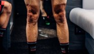 Schrikwekkend: zo afgepeigerd zijn rennersbenen na bijna drie weken in de Giro