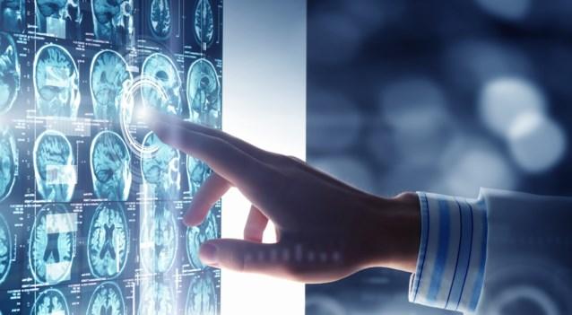 """Wereldprimeur voor KU Leuven: onderzoekers maken """"atlas van de hersenen"""""""