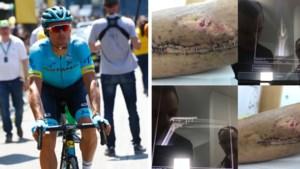 Zo ziet een elleboogbreuk er twee weken later uit: Luis Leon Sanchez deelt opmerkelijke foto van blessure