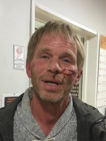 Actievoerder die arrestatie asielzoekers filmde klaagt politiegeweld aan