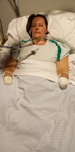 Moeder (33) van twee kinderen slachtoffer van vleesetende bacterie: zo verwoestend dat ze beide knieën, benen en armen verloor