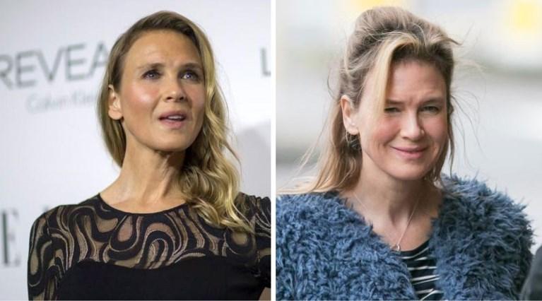 Famke Janssen onherkenbaar na botoxingreep: deze sterren gingen haar vooraf