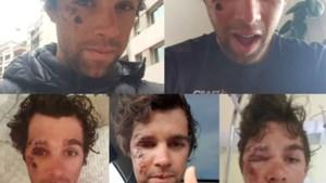 Zo ziet een renner eruit vijf dagen na zware val: hersenschudding én scheurtje in oogkas bij Michael Matthews
