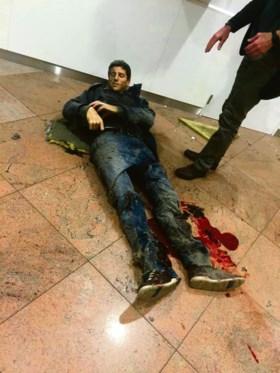 """Nog maar 36 procent kreeg schadevergoeding van aanslagen 22 maart: """"Belgische overheid heeft niets voor slachtoffers gedaan"""""""
