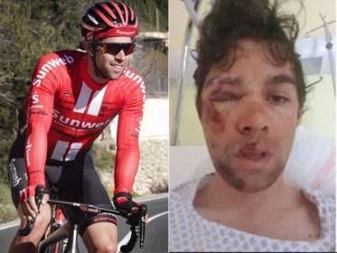 Op 12 dagen van halfdood naar Milaan-Sanremo: de miraculeuze genezing van Michael Matthews