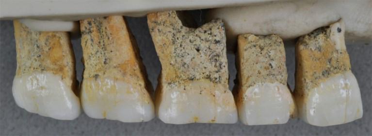 """Resten van onbekende mensensoort ontdekt op Filipijnen: """"Waarschijnlijk niet groter dan kleuter"""""""