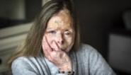 """Slachtoffer zuurgooier onderging 111 operaties: """"De Block is mijn strijd voor terugbetaling vergeten"""""""