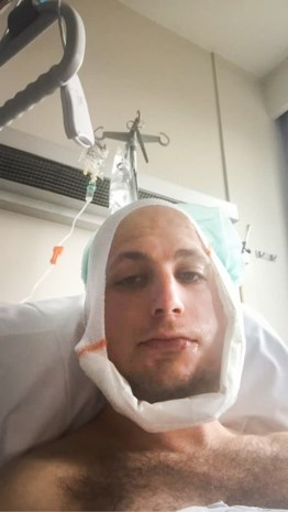 """Jongeren breken kaak van Genk-supporter Christian tijdens kampioenennacht: """"Waarom doen fans zoiets?"""""""