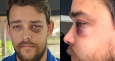 """Voetbalfan Dimitri (33) in elkaar geslagen na match: """"Het enige wat ik gedaan heb, is tonen dat ik Limburger ben"""""""