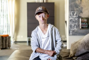 Michiel eert overleden progeriapatiëntje en vriend Toon met unieke tattoo