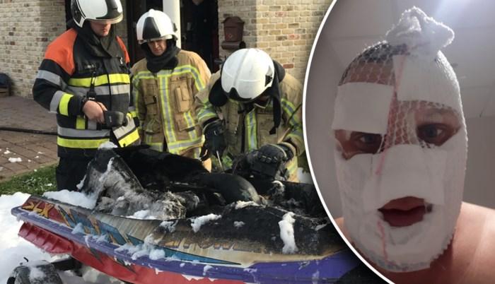 """Gill (32) loopt zware brandwonden op aan gezicht nadat batterij ontploft: """"Het had nog zoveel erger kunnen zijn"""""""