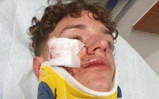 """Lennert (15) herstelt van vechtpartij op Chirofuif: """"Iemand heeft een boksbeugel gebruikt"""""""