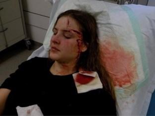 """Stans (27) werd met glas in haar gezicht gestoken: """"Leven is verwoest"""""""