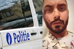 Verkeersagressie leidt tot bizarre gijzeling: bestuurder ontvoerd en geslagen met staaf