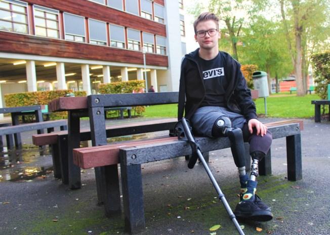 """Roy (21) verloor drie ledematen bij een treinongeval, maar dat heeft hem alleen maar sterker gemaakt: """"Er is altijd nog iets om voor te vechten"""""""