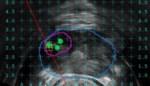 Nieuwe techniek bij diagnose van prostaatkanker is primeur voor ASZ