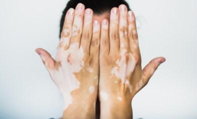 Fotografe brengt mensen met huidziekte in beeld