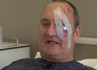 """VIDEO. Cafébaas Luc thuis in elkaar geslagen met koevoet: """"Artsen hebben gelukkig mijn oog nog kunnen redden"""""""