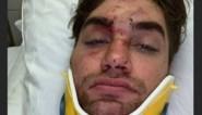"""Joshua na verkeersongeval: """"Ik ben blij dat ik nog leef"""""""