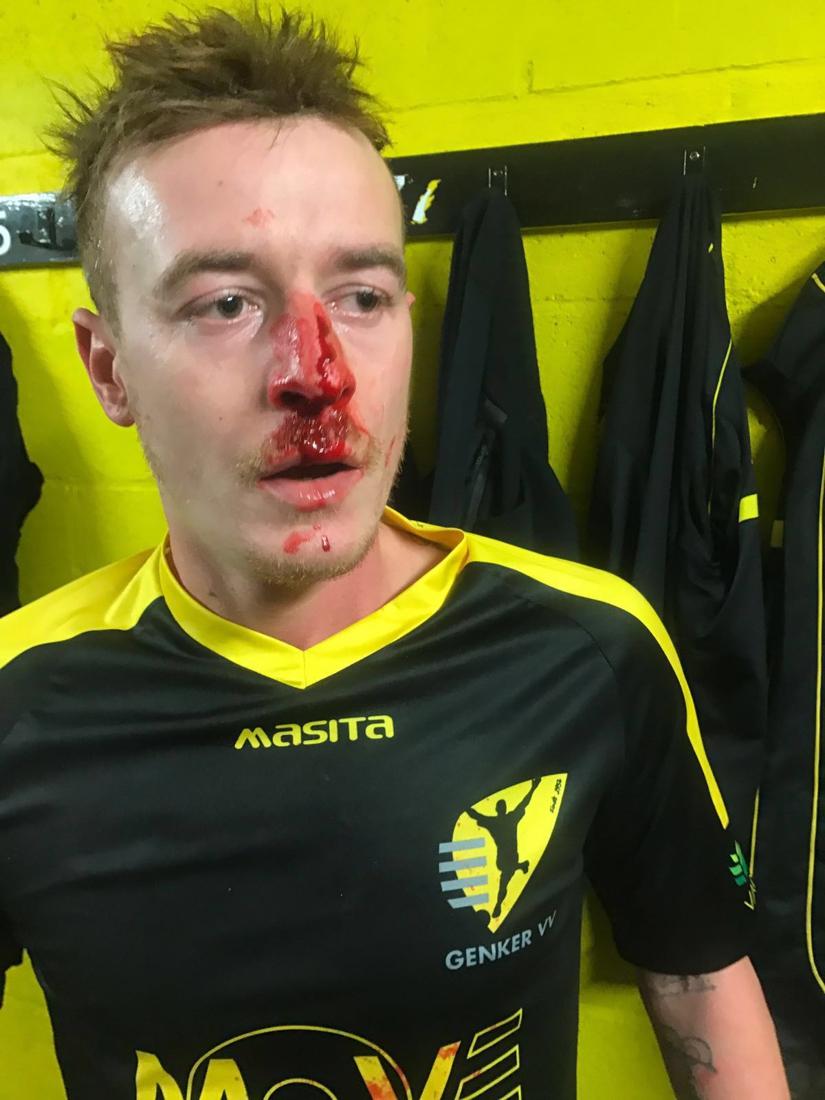 """23-jarige doelman riskeert zware straf voor trap in gezicht tegenstander: """"Als ge scoort, maak ik u dood"""""""