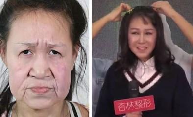 Meisje (15) werd gepest om haar oudere uiterlijk, maar ingrijpende operatie levert verbluffend resultaat op