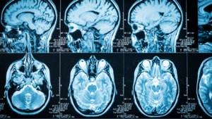 Hoe de hersenen al snel verklappen of een alcoholverslaafde zal hervallen of niet