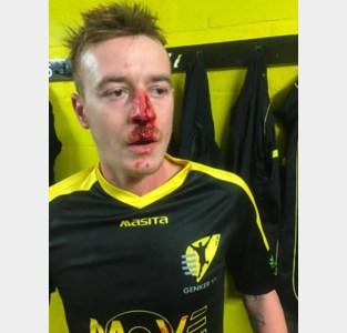 Werkstraf voor keeper die opponent gebroken neus sloeg