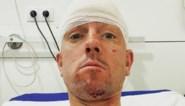 """Triatleet Frederik Van Lierde knalt door achterruit op training: """"Ik heb geluk gehad"""""""