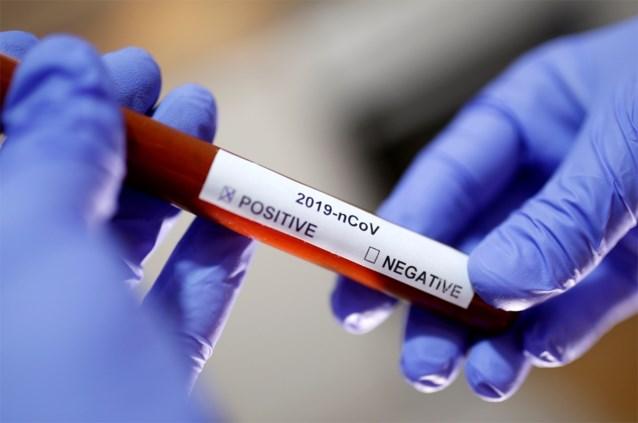 UZ Leuven moet tests voor coronavirus inperken vanwege tekort aan reagentia