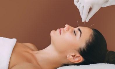 Acupunctuur helpt tegen migraine