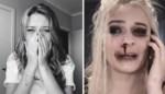 Verontrustende trend op TikTok: meisjes doen alsof ze slachtoffers van huiselijk geweld zijn