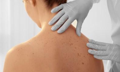 Het ene vlekje is het andere niet: hoe controleer je jezelf op huidkanker?