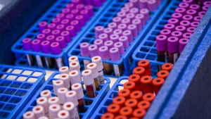 Coronatests die antistoffen opsporen: goed voor de nieuwsgierigheid, verder weinig nut