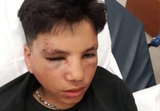 """14-jarige in elkaar geslagen in Kotem, """"enkel voor zijn Gucci pet"""""""