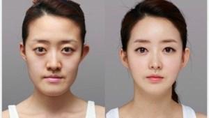 Zes op de tien twintigers in Seoel aan de plastische chirurgie