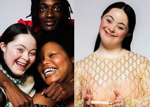Jonge vrouw met syndroom van Down schittert in campagne van Gucci