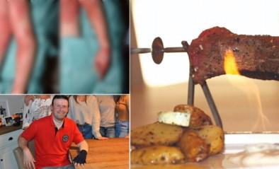 Slachtoffer getuigt na 55 dagen ziekenhuis en drie huidtransplantaties door populaire steak