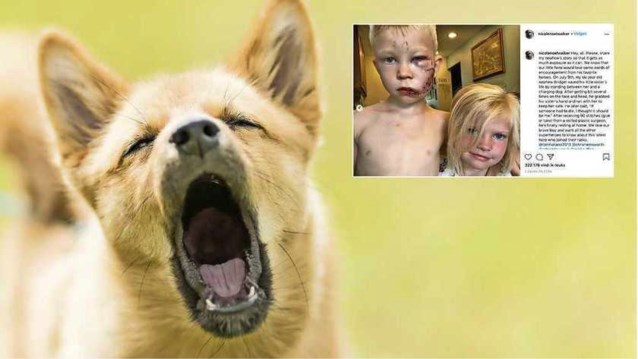"""Bridger (6) redt zusje van agressieve hond: """"Als iemand dood moest, dan beter ik"""""""