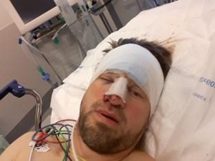 """Fietser Werner (46) over de kop door ontbrekende signalisatie op werf: breuken in nek en neus, barst in schedel en tal van snijwonden: """"Ik dien klacht in"""""""