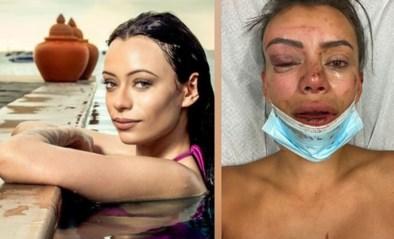 """'Temptation island'-verleidster in elkaar geslagen in eigen woning: """"Wees niet zo naïef als ik"""""""