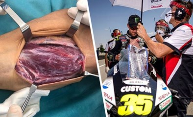 Niet voor gevoelige kijkers: MotoGP-rijder Cal Crutchlow filmt hoe armspier beweegt tijdens operatie aan pols