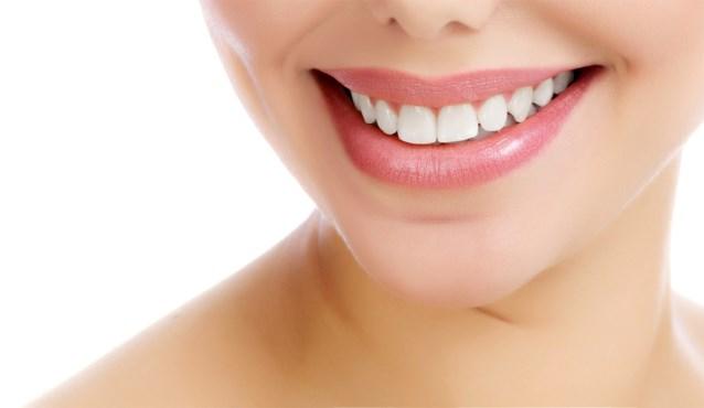 Tanden vijlen: een trend op TikTok, geen goed idee in de praktijk