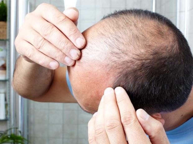 Wat haarverlies kan doen met je hoofd en wat je ertegen kan doen