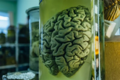 """Covid-19 kan permanente hersenschade veroorzaken: """"Zeer onrustwekkend dat dit ook bij patiënten met enkel reukverlies kan"""""""