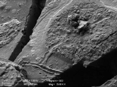 """Italianen vinden intacte hersencellen van 2.000 jaar oud: """"Het onderzoek kan in de toekomst levens redden"""""""
