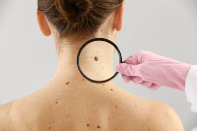 Huidkanker onder de radar door corona, dermatologen dringen aan op meer zelfonderzoek