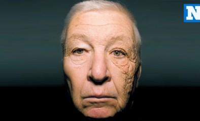 ZO ZIT DAT. Wat doet de zon met je huid?
